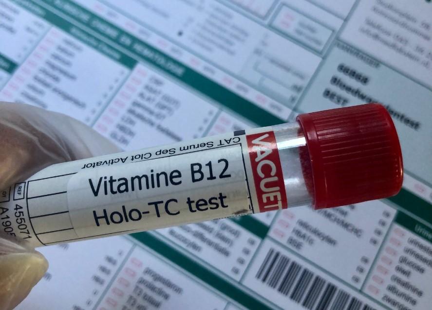 b12 tekort test buisje