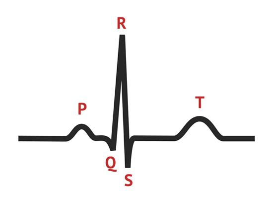 ECG van normale hartslag